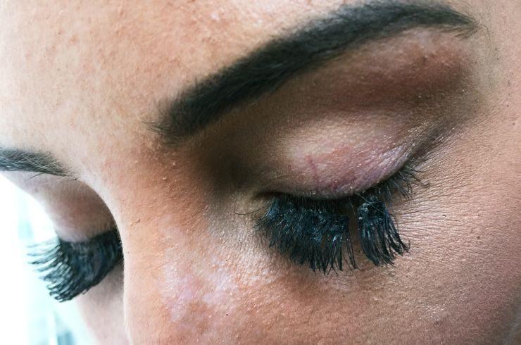 Infection from fake eyelashes